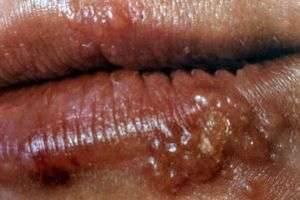 Что это такое вирус герпеса ?