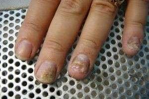 Как быстро вылечить грибок ногтей на руках и ногах лекарственными средствами?