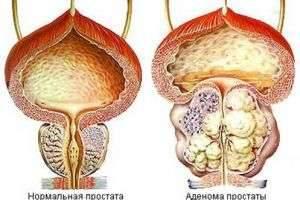 Аденома простаты: диагностировать легко - лечить сложно