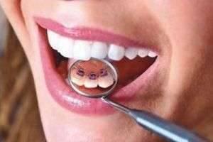Как выровнять зубы без брекетов эффективно и недорого