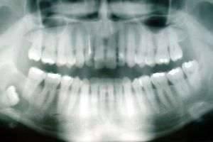 Удалить нельзя оставить: зачем нужны зубы мудрости