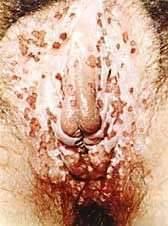Что такое герпес генитальный?