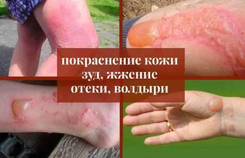 Борщевик: симптомы, лечение ожогов и последствия