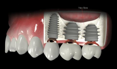 Что такое лифтинг зубов?