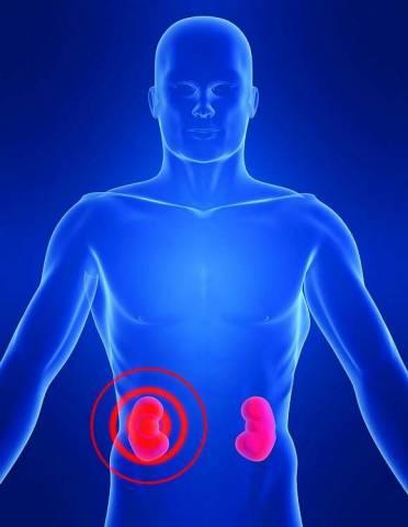 Этиология и патогенез заболевания пиелонефрит