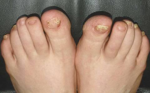 Глицерин и уксус против грибка стопы