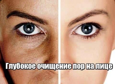 Глубокое очищение пор на лице