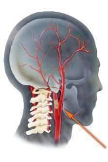 Характеристика атеросклероза артерий шеи: симптомы, причины и лечение
