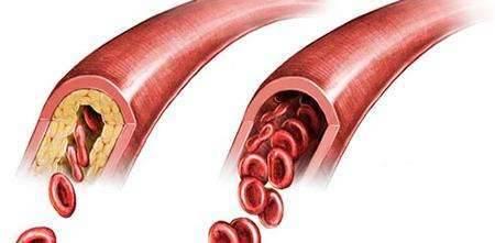 Характеристика заболевания атеросклероз: его симптомы и причины