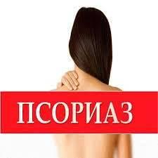 Псориаз: причины, симптомы, лечение и профилактика