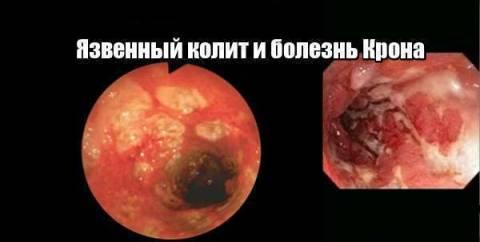 Сравнение болезни Крона и язвенного колита