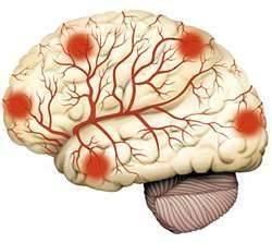 Как лечить атеросклероз магистральных сосудов головного мозга