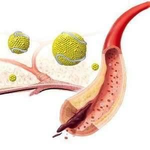 Лечение атеросклероза экстракраниальных артерий