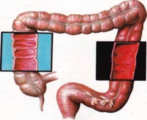Неспецифический язвенный колит: симптомы и лечение