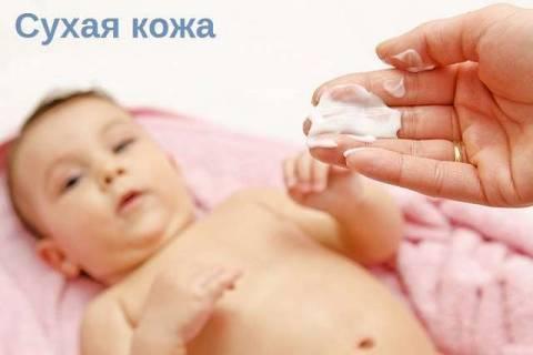 Причины и способы борьбы с сухой кожей у младенца