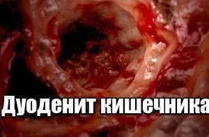 Признаки дуоденита кишечника и его лечение