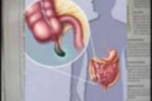 Каковы симптомы аппендицита: первые признаки и самостоятельная диагностика
