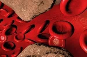 Симптомы и лечение атеросклероза брахиоцефальных артерий