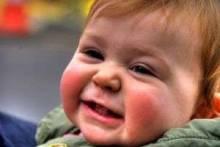 Можно ли предотвратить появление диатеза у новорожденных и какое лечение необходимо, если он возник