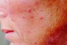 Как бороться с кожными заболеваниями?