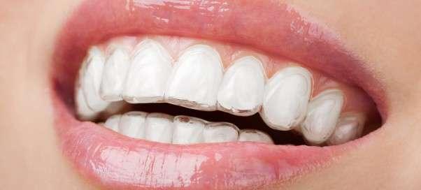 Капа для отбеливания зубов. Как правильно выбрать?